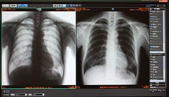 院内デジタル化で患者様に大きなメリット